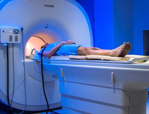 ¿Cómo superar el miedo a la resonancia magnética?